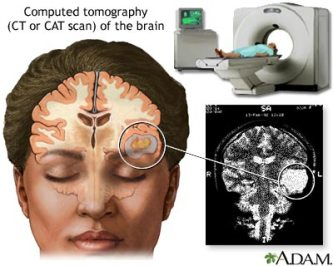 ct-scan image