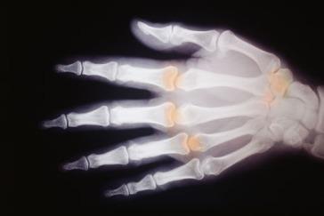 x-rayimg